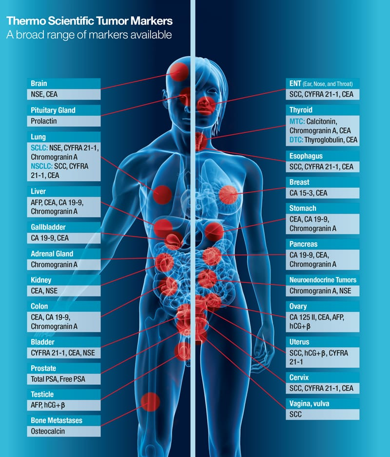 tumor-markers-oncology